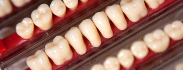 Losse tanden kleur